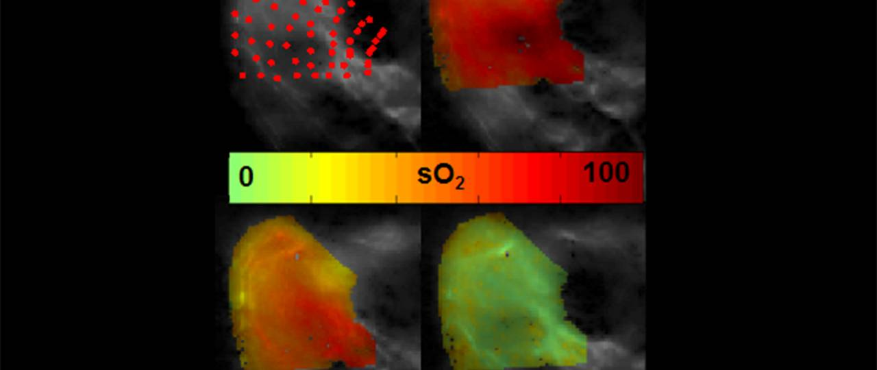 An eMSOT image in which high and low levels of oxygen are shown in red and green (image: Tzoumas / TUM)