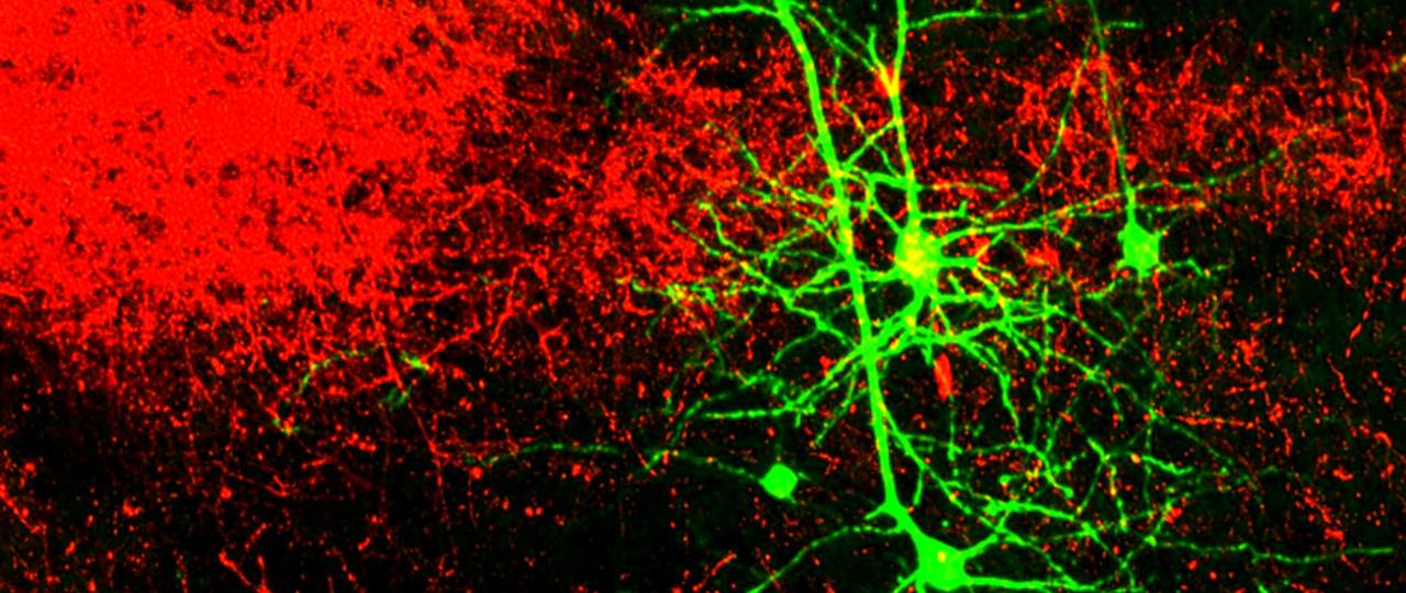 The neurons in the cortex are dyed red and the axons in the higher-order thalamus are shown in green. (Picture: R. Mease, M. Metz, A. Groh / Cell Reports, 10.1016/j.celrep.2015.12.026, modified, licensed under CC BY-NC-ND 4.0)