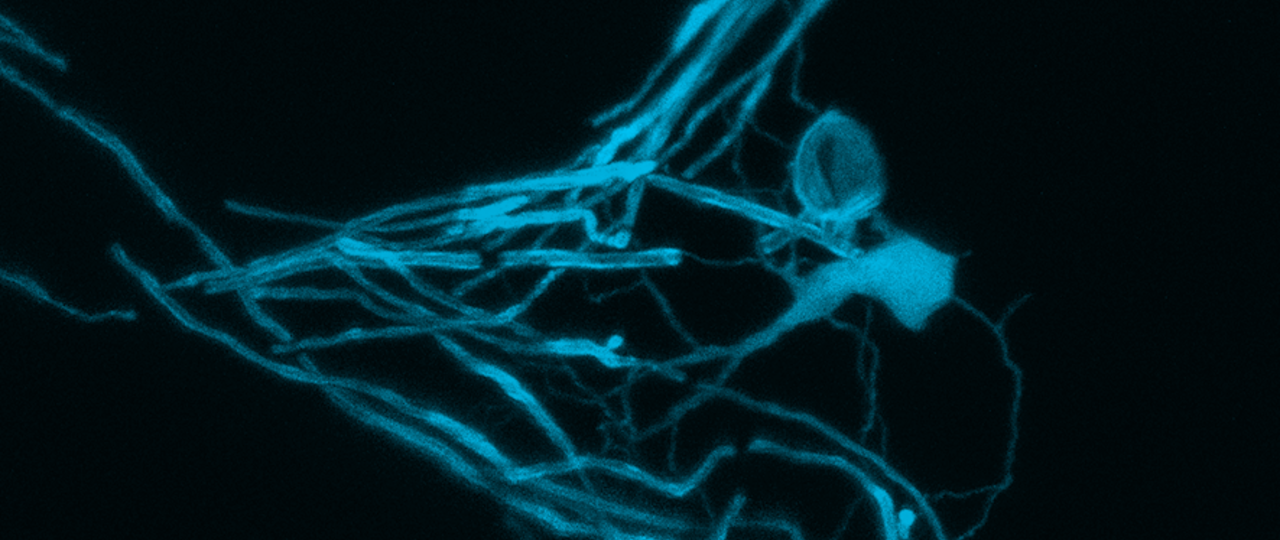 An oligodendrocyte forming myelin around an axon.