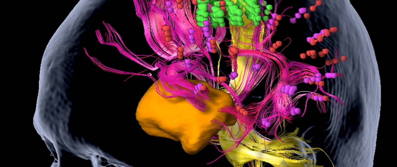 nTMS mapping of a tumor (orange): Neural pathways and essential position points for language regions are shown in pink, important points for motor areas in green, and neural pathways for motor areas in yellow. (Graphic: Sandro Krieg / TUM)