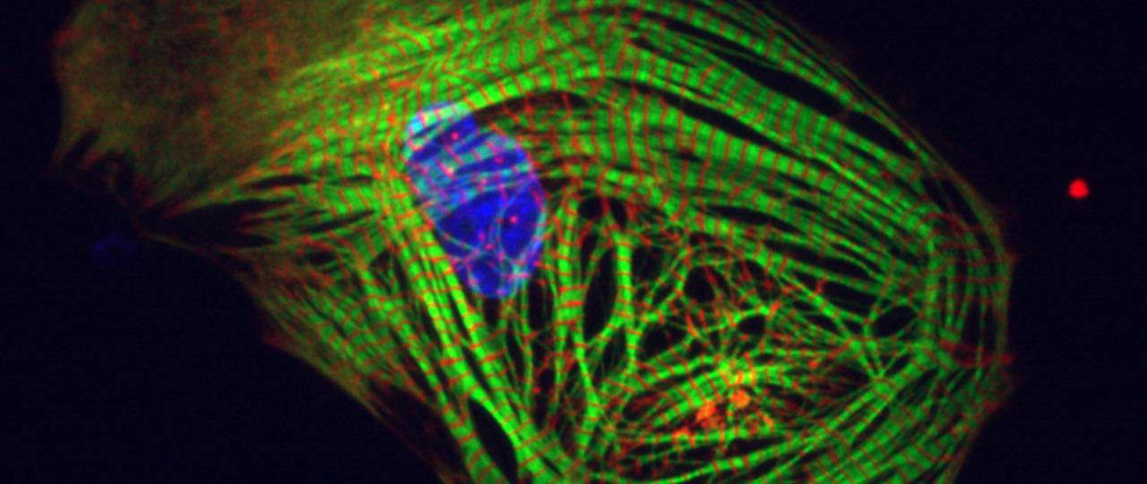 A heart muscle cell produced from induced pluripotent stem cells.  (photo: Alessandra Moretti / TUM)