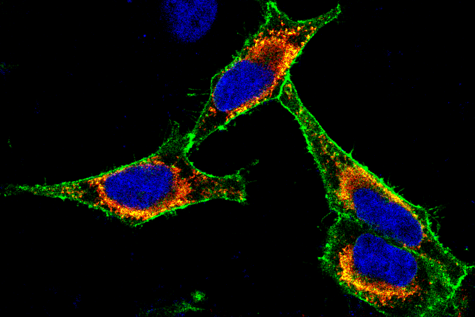 Immunofluorescence image of cancer cells in which a membrane protein has been labeled with a green fluorescent dye. The nucleus is marked with a blue dye.