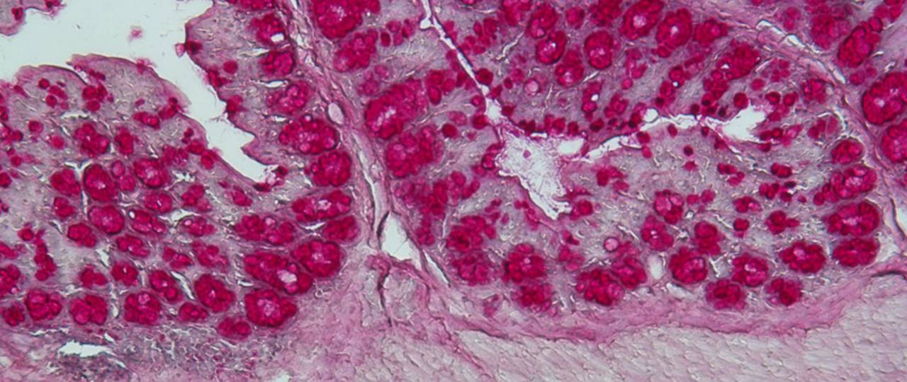 A histological staining of a colon section.