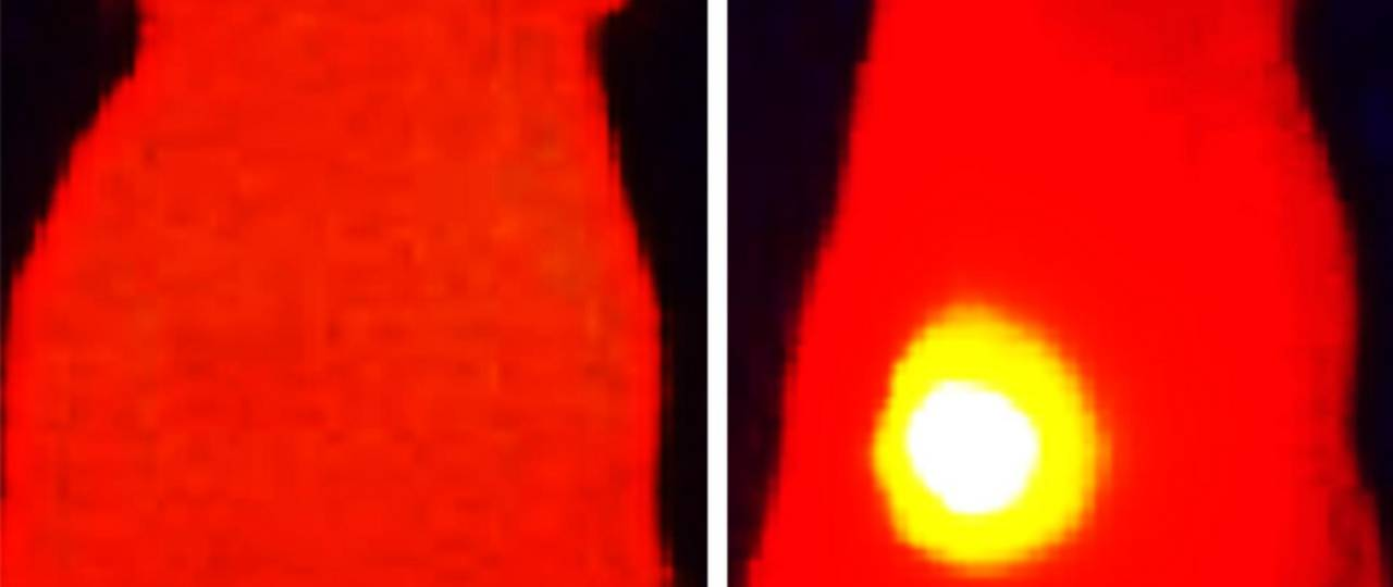 Infrared thermal images show elevated tumor (yellow) temperature in mice after laser irradiation in with OMV-melanin treated mice (right image). The image on the left shows a mouse treated with OMVs without melanin.