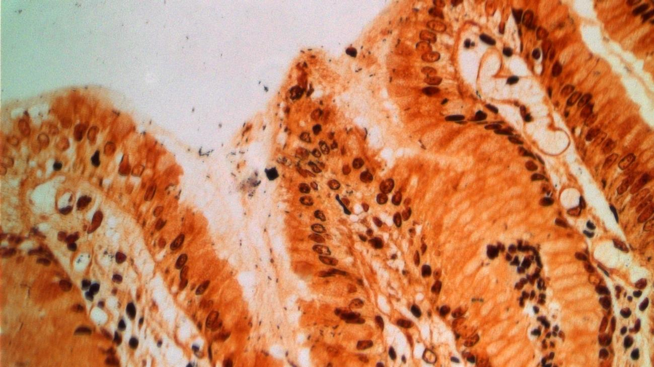Microscopic image of stomach tissue infected with Helicobacter pylori.