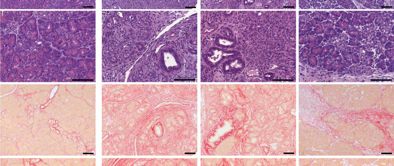 Cerulein-induced chronic pancreatitis was exacerbated in TRPV6mut/mut mice.