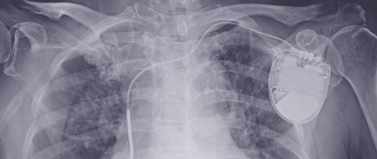 An x-ray image of a patient with an implanted defibrillator
